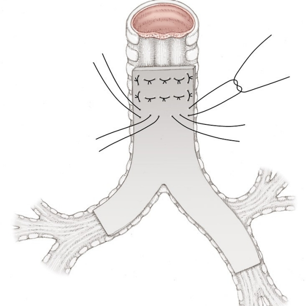 medical illustration of a tracheoplasty in a Y shape