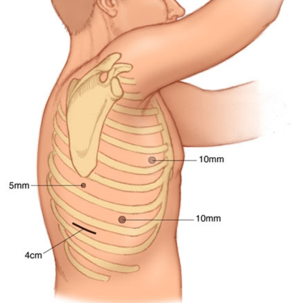 medical illustration of the right VATS incisions that are used to mobilize the esophagus.