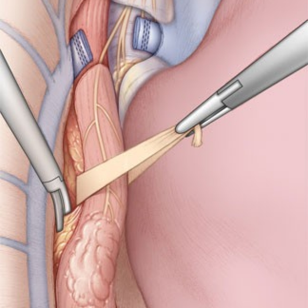 medical illustration of thoracoscopic (VATS) mobilization of the esophagus