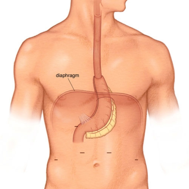 medical illustration of a completed Minimally Invasive Ivor Lewis Esophagectomy.