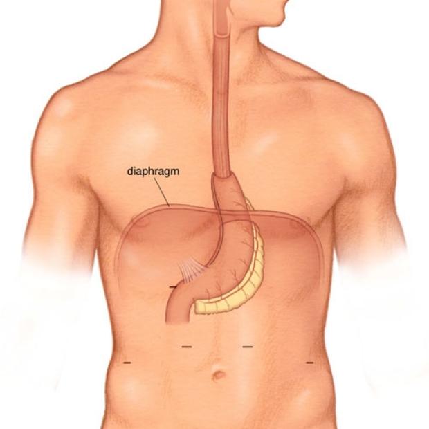 medical illustration of a completed Minimally Invasive Ivor Lewis Esophagectomy.