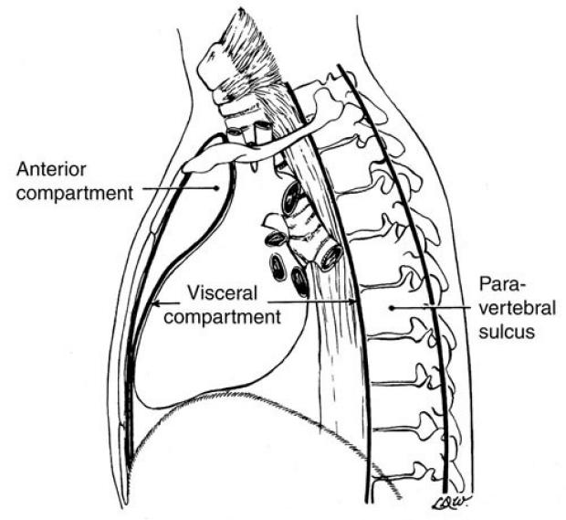 medical illustration of three regions of the mediastinum