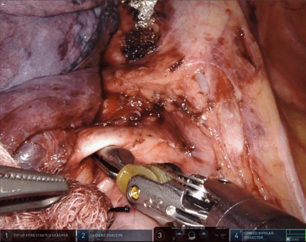 photo of a robotic surgery