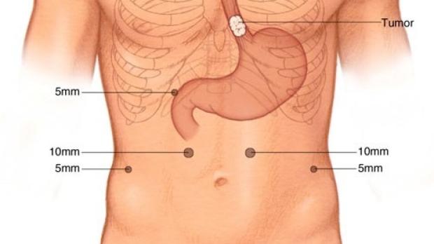 medical illustration of laparoscopic incisions for minimally invasive Ivor Lewis Esophagectomy