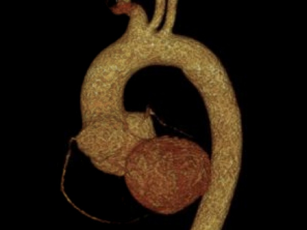 image of aortic aneurysm