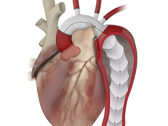 Cardiothoracic Surgery Clinical Trials | Department of