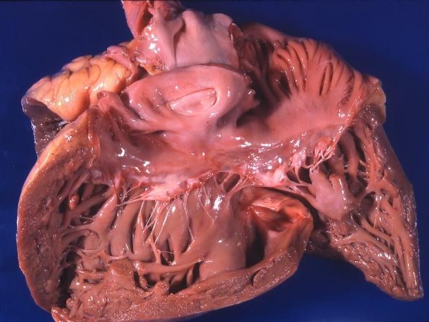 Wnts in Right Ventricular Failure