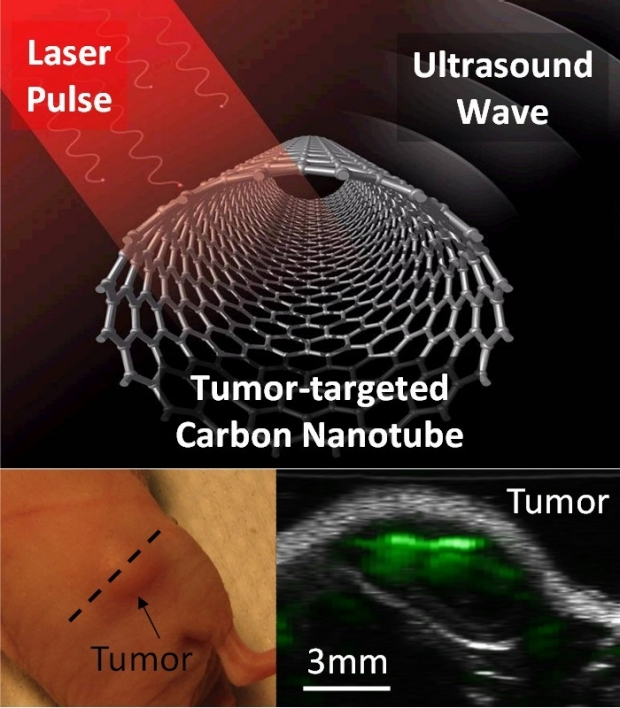 Photoacoustic Molecular Imaging