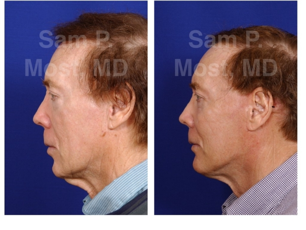 Sam P. Most Chin Implant