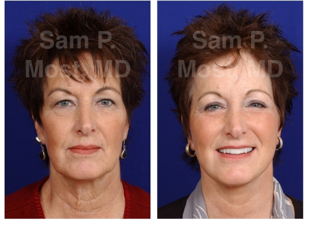 Sam P. Most Facelift