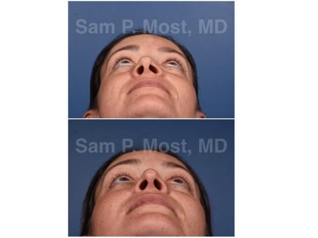 Sam P. Most - Revision Rhinoplasty