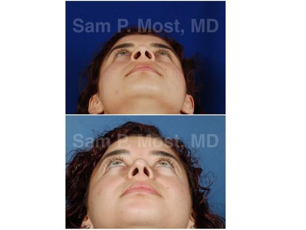 Sam P. Most Rhinoplasty