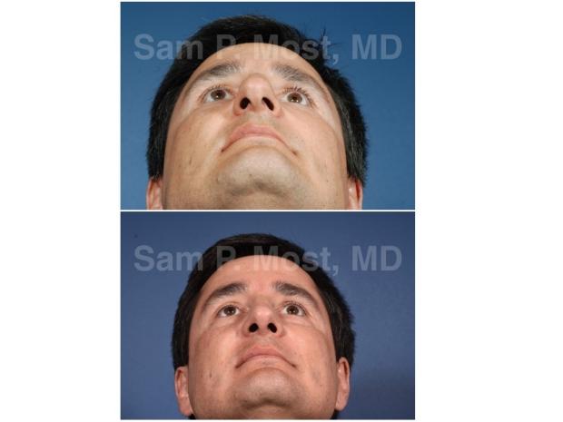Dr. Sam P. Most Rhinoplasty