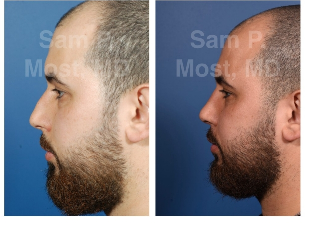 Sam P. Most - Primary Rhinoplasty
