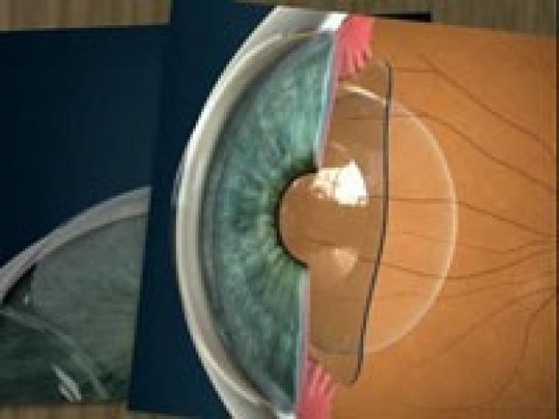 Intraocular Contact Lens (ICL)