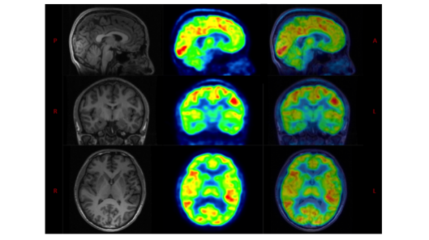 Molecular neuroimaging in adults with autism spectrum disorder