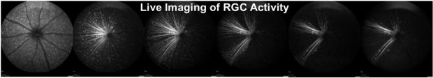 live imaging for eye