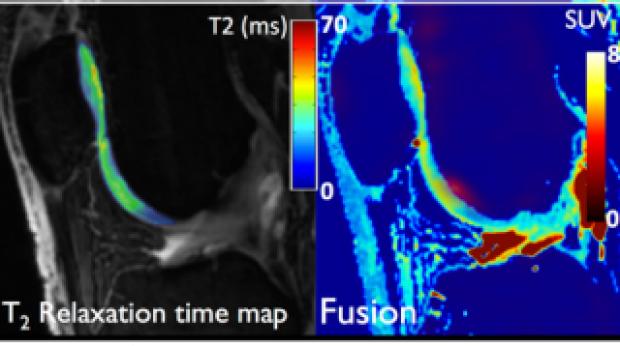 PET-MRI Paper Featured in Orthopedics This Week