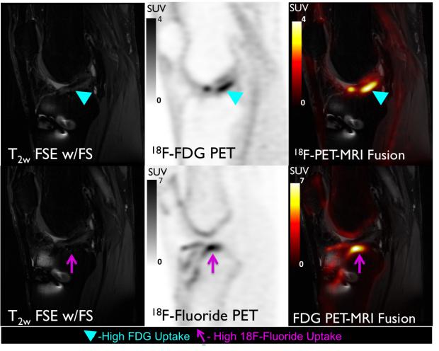 PET/MRI of Osteoarthritis