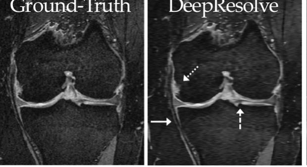 Super-Resolution Musculoskeletal MRI Using Deep Learning