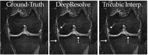 Super-resolution musculoskeletal MRI