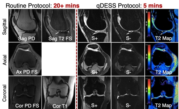 5-Minute Quantitative Double-Echo in Steady-State Sequence for Comprehensive Whole-Joint Knee MRI