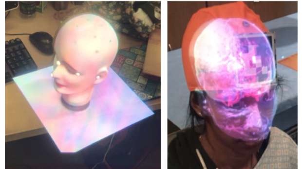 Comparison of Head Pose Tracking Methods for Mixed-Reality Neuronavigation