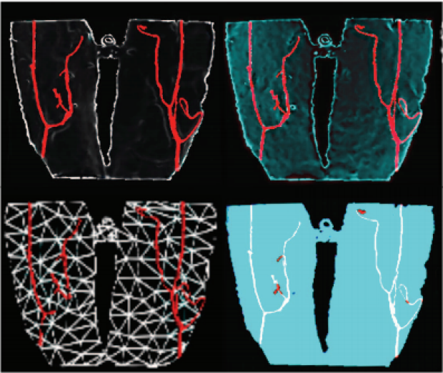 Evaluation of different visualization techniques for perception-based alignment in medical AR