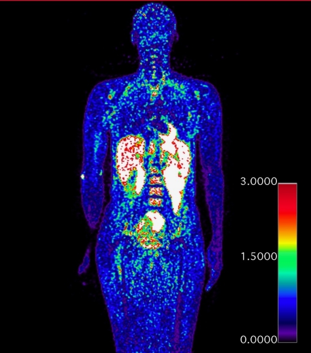 Michelle James PET scan
