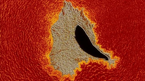 anticancer drug may tackle heard disease