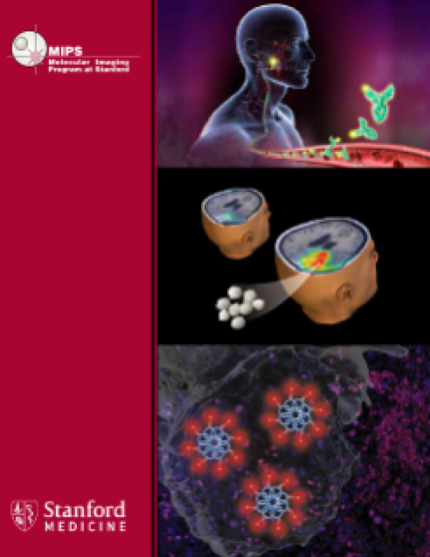 2017 MIPS brochure cover