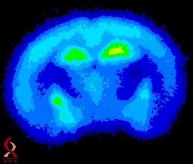 Bio-X PET brain scan