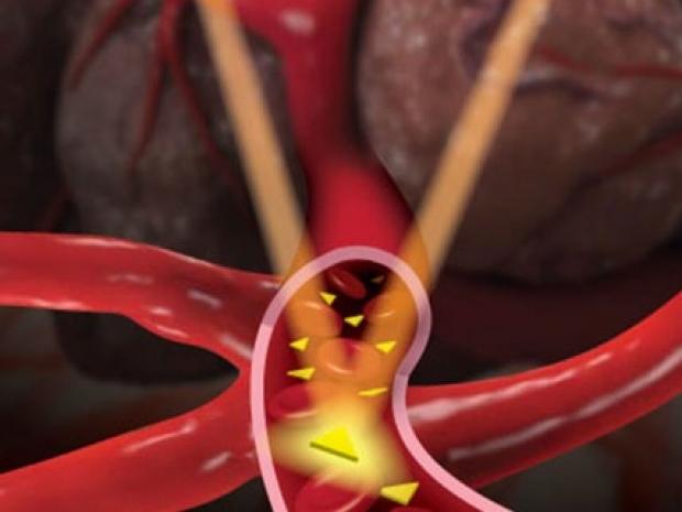 Illustration of tumor imaging using gold nanoprisms