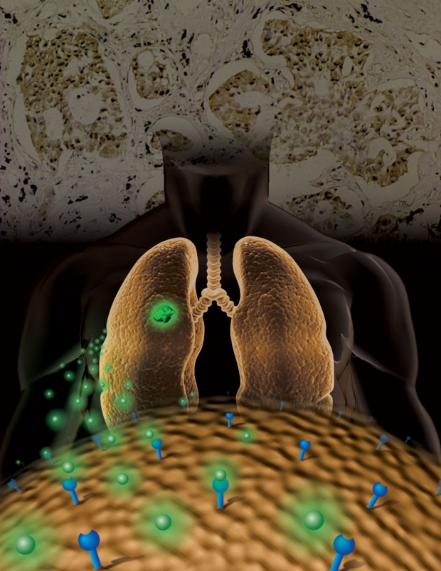 Illustration of the use of molecular imaging to classify EGFR to manage lung cancer treatment