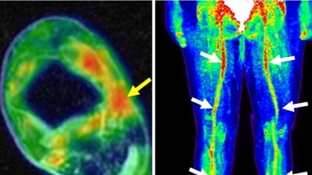 Biswal Lab Uses FDG-PET/MRI to Pinpoint Chronic Extremity Pain
