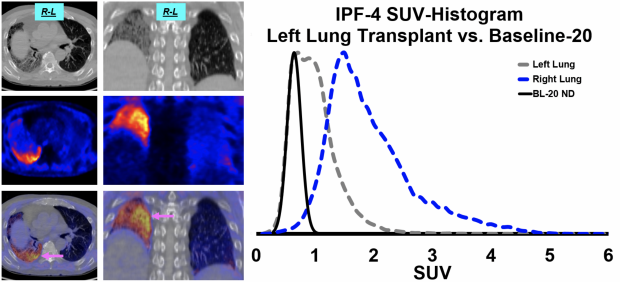 Knottin Peptide PET Tracer Detects IPF
