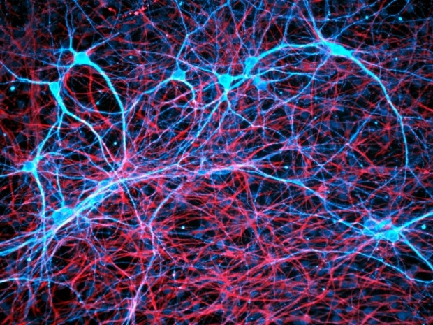 Neurons (blue) play a surprising part in how some cancers take root in the brain.Credit: Daniel Schroen/Cell Applications INC/Science Photo Library