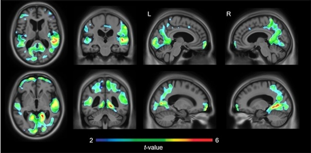 Regional Tangles and Behavior. Tau PET signal in highlighted brain regions correlates with mild behavioral impairment in 91 cognitively impaired older people. [Courtesy of Firoza Lussier, Serge Gauthier, and Pedro Rosa-Neto.]