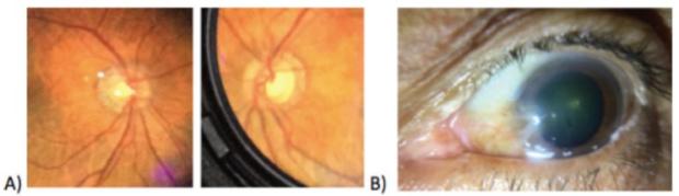 Teleophthalmology photo of eyes