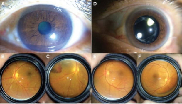 Images from eye taken on smartphone