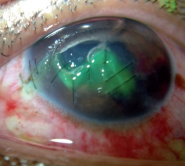 Damaged eyeball in ophthalmic smartphone imaging