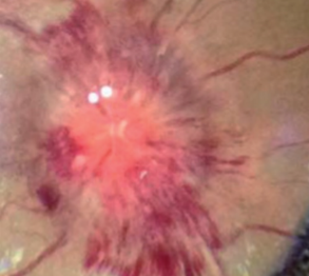 Image of eyeball taken from ophthalmic smartphone