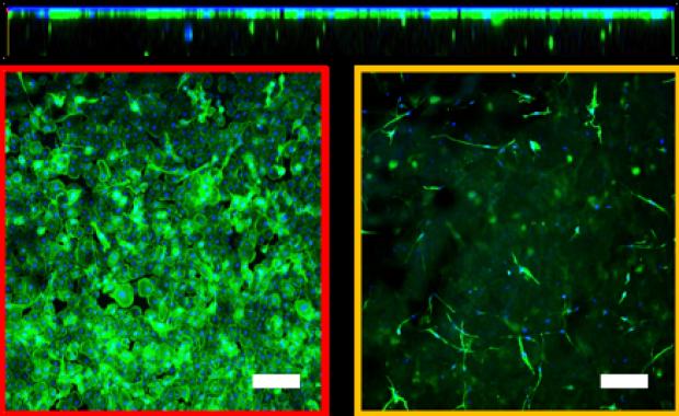 Bio-orthogonally Crosslinked, In Situ-forming Corneal Stromal Tissue Substitute