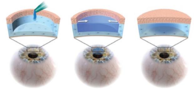 hydrogel used on corneas