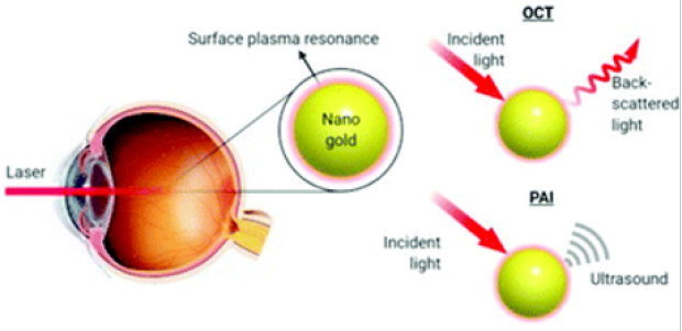 Gold nanoparticles to enhance ophthalmic imaging