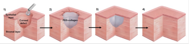 In situ-forming collagen hydrogel crosslinked via multi-functional PEG as a matrix therapy for corneal defect