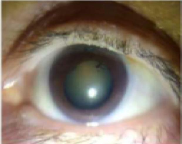 eye with eye disease