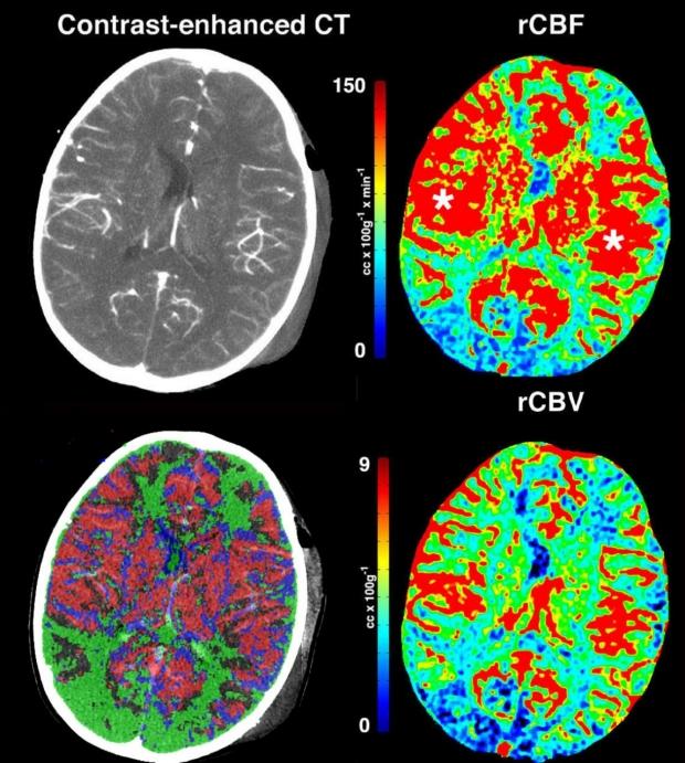 Traumatic Brain Injury Imaging