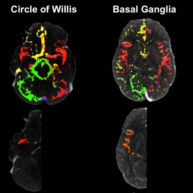 Cerebral hemodynamics