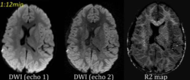 Fast Pediatric MRI Protocols